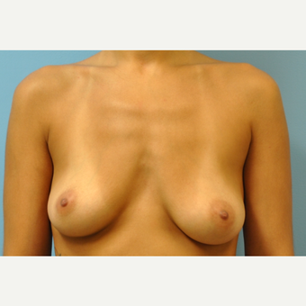 27 year old woman treated with Breast Augmentation, silicone, B to full C cup before 3776148