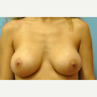 27 year old woman treated with Breast Augmentation, silicone, B to full C cup after 3776148