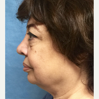 65-74 year old woman treated with Facelift and Lower Blepharoplasty before 3175222