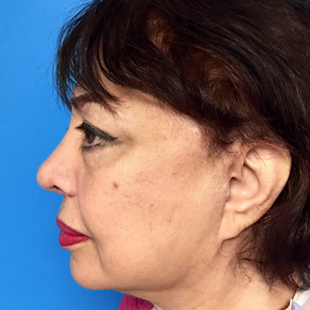 65-74 year old woman treated with Facelift and Lower Blepharoplasty after 3175222