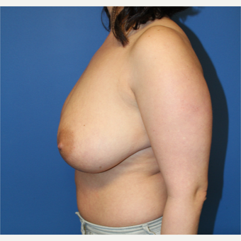 25-34 year old woman treated with Breast Reduction before 3765299