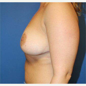 25-34 year old woman treated with Breast Reduction after 3765299
