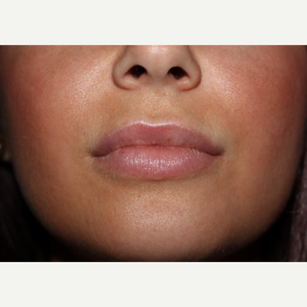 29 year old woman treated with 2cc's Juvederm Ultra to lips and around mouth after 3185400