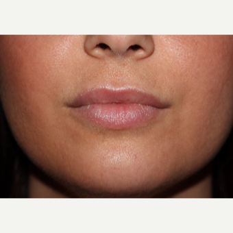 29 year old woman treated with 2cc's Juvederm Ultra to lips and around mouth before 3185400