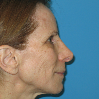 45-54 year old woman treated with Revision Rhinoplasty before 2843227
