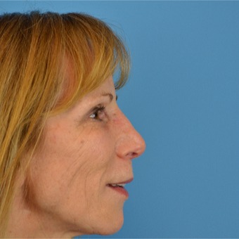 45-54 year old woman treated with Revision Rhinoplasty after 2843227