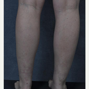 25-34 year old woman treated with Liposuction to the ankles after 3816093