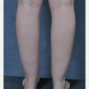 25-34 year old woman treated with Liposuction to the ankles before 3816093