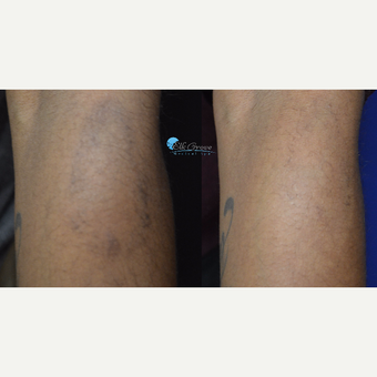 18-24 year old woman treated with Halo Laser
