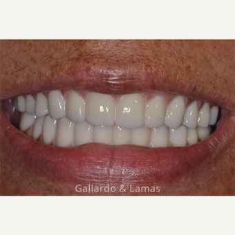 55-64 year old man treated with All-on-4 Dental Implants after 3075208