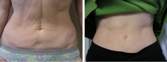 Thermage Skin Tightening for the Abdomen before 1010742