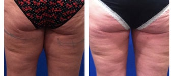 Inner Thigh Gap with 1 session of CoolSculpting before 1346599
