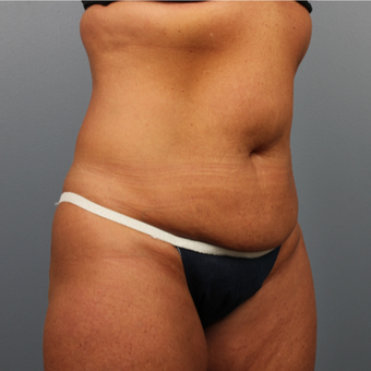 45-54 year old woman treated with CoolSculpting after 3507418