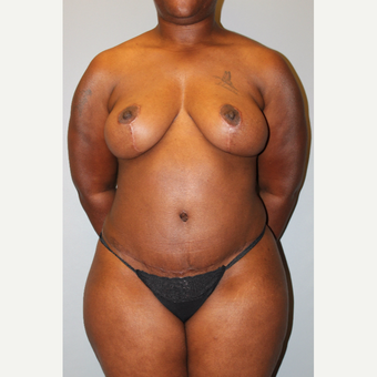 35-44 year old woman treated with Mommy Makeover after 3588401