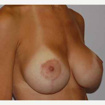 25-34 year old woman treated with Breast Lift with Implants after 3501850