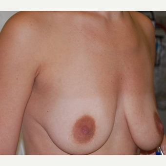 25-34 year old woman treated with Breast Lift with Implants before 3501850