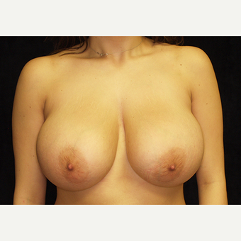 18-24 year old woman treated with Breast Lift with Implants before 3060947