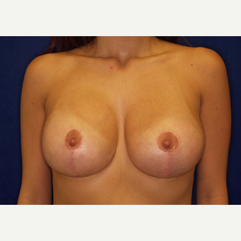 18-24 year old woman treated with Breast Lift with Implants after 3060947