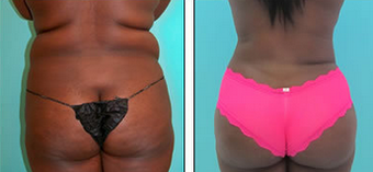 Brazilian Butt Lift Before & After after 1110809