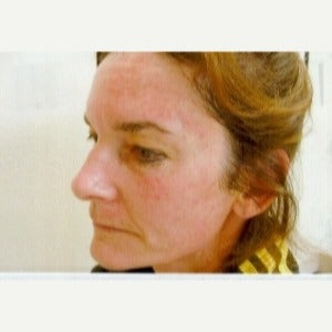 55-64 year old woman treated with Photodynamic Therapy before 2571744
