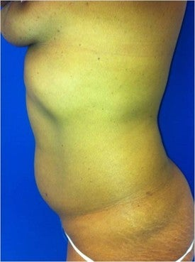 Laser Liposuction before 561227