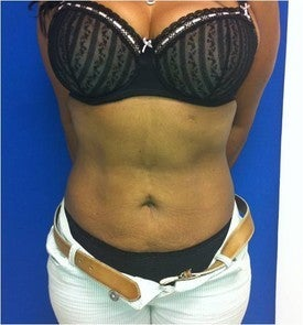 Laser Liposuction 561227