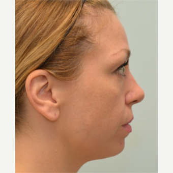 34 year old woman treated with Voluma, Restylane, and Dysport before 2585905