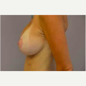 Breast Lift with Implants after 3058209