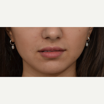 18-24 year old woman treated with Lip Augmentation after 3419631