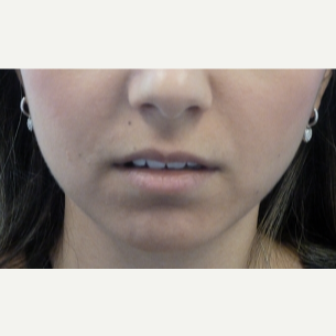 18-24 year old woman treated with Lip Augmentation before 3419631