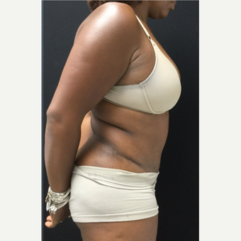 45-54 year old woman treated with Tummy Tuck after 3481542