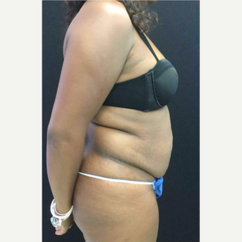 45-54 year old woman treated with Tummy Tuck before 3481542