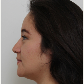 25-34 year old woman treated with Rhinoplasty after 3371691