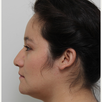 25-34 year old woman treated with Rhinoplasty before 3371691