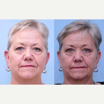 65-74 year old woman treated with Eyelid Surgery before 3749319