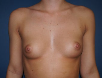 23 year old desired larger breasts before 1295545