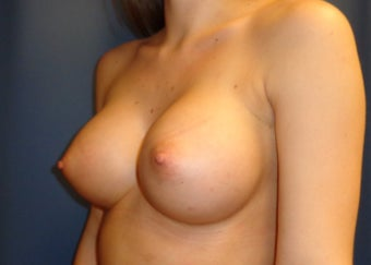 23 year old desired larger breasts 1295545