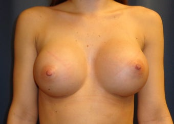 23 year old desired larger breasts after 1295545