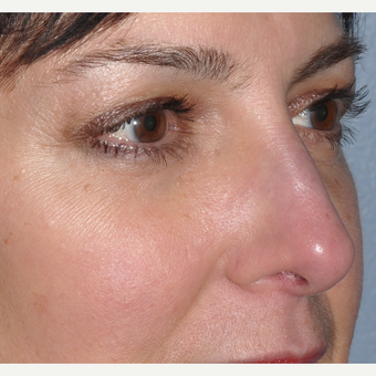 Facial filler to lower eyelid and cheek after 3375023