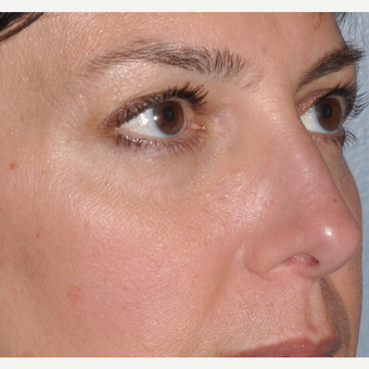 Facial filler to lower eyelid and cheek before 3375023