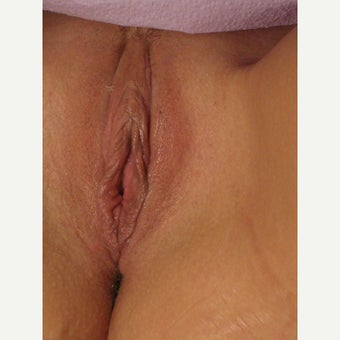 54 year old woman treated with Vaginal Rejuvenation (labiaplasty, perineoplasty, vaginoplasty) after 2008316