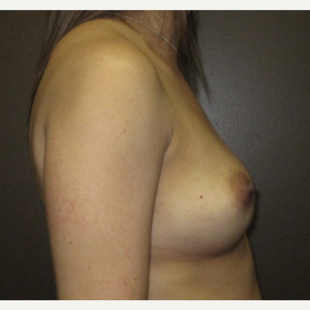 35-44 year old woman treated with Breast Augmentation before 3424564