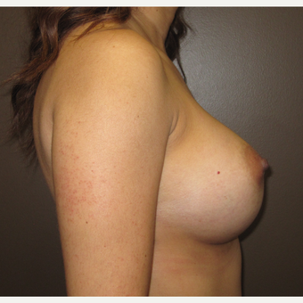 35-44 year old woman treated with Breast Augmentation after 3424564