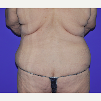 55-64 year old woman treated with Body Lift before 3455258
