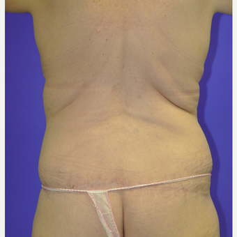 55-64 year old woman treated with Body Lift after 3455258