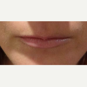25-34 year old woman treated with Lip Augmentation before 3740706