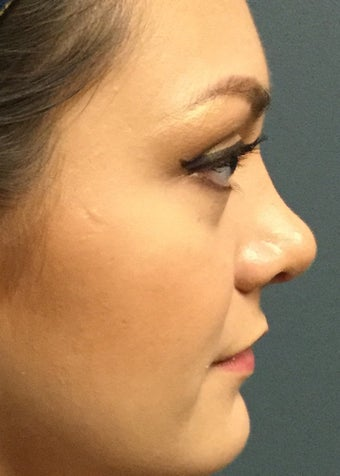 18-24 year old woman treated with Rhinoplasty after 2764985
