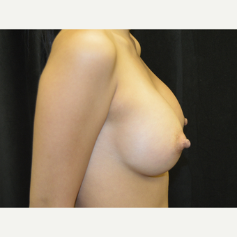 18-24 year old woman treated with Breast Implants after 3423912