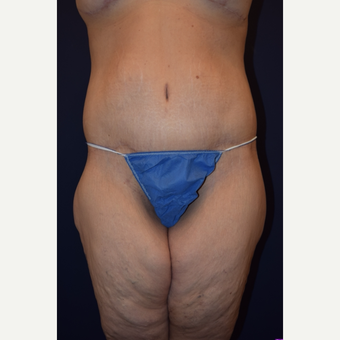 35-44 year old woman treated with Body Lift after 3212106