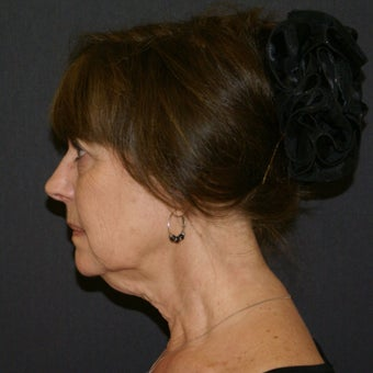55-64 year old woman; facelift, necklift, lower blepharoplasty, and fat transfer before 1878651